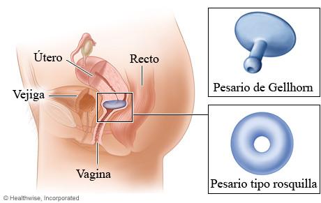 Gellhorn Pesario Flexible. Vástago corto. Soporte para prolapso úterino.