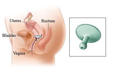 Dispositivos Gellhorn De Dr ARABIN. Pacientes con prolapso grave de la vagina.
