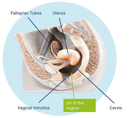 Gel Vaginal PREFERT. Ayuda para la concepción